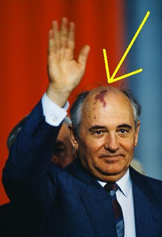 Gorbachev birthmark